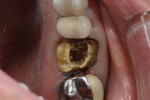 Case 1 preparation down to the level of the gutta-percha from previous endodontic therapy.