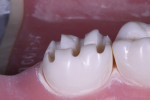 Occlusal depth cuts.