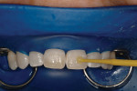 Figure 8  The material was next applied to thesurface of the teeth in a circular motion for 20seconds.
