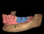 Fig 3. Partially edentulous patient case; patient CBCT scan data (brown) with overlay of patient model optical scan (red) and optical scan of wax-up of the planned restoration (blue), before treatment planning.