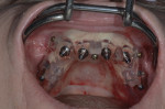 Fig 5. Maxillary implants placed through the surgical guide.