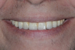 Fig 17. Patient's smile with completed restoration.