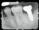 Fig 1. Analog radiograph of implant site affected by peri-implantitis.