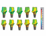 Evaluation of trueness with comparison of the abutment scans to design file.