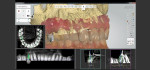 3Shape Implant Studio software combining CBCT and intraoral scan to plan surgical implant placement.