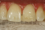 Figure 8  The highly chromatic artificial dentindisplayed primary optical properties.