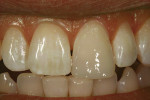 Figure 9  The translucency of the enamel mimickingcomposite brought vitality to the restoration.Note that although shade matching appearedinadequate on the day of completion, this illusionis caused by desiccation of the adjacent naturaltooth during b