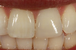 Figure 10  At the 1-week follow-up, the surfacegloss was achieved using standard polishingprotocols. Note that the true shade matchwas evident after the adjacent tooth rehydrated.