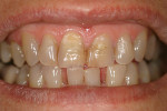 Figure 11  Preoperative, highly chromatic maxillaryanterior incisors.