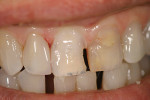 Figure 12  The prepared right central incisor.