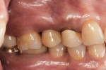 Postoperative view of monolithic zirconia crown on custom titanium abutment of tooth No. 4.