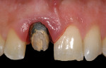 Fig 2. Once the existing crown was removed, the excessive apical placement of the preparation's margin was apparent.