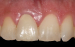 Fig 5. The clinical appearance of the definitive crown after 1 year in situ showed that the soft-tissue profile was stable and symmetric with the left central incisor (natural tooth).