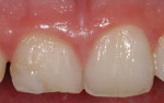 Fig 6. Right central incisor had a deficient composite restoration and palatal caries requiring a full crown restoration.