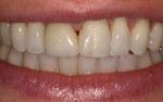 Fig 10. Papillary deficiency between maxillary central incisor teeth and the mesio-distal dimensions were apparent during normal smile.