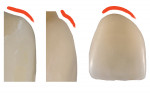Fig 18. The facial contours of the original implant-supported crown are contrasted with the new, definitive restoration. A linear transition from the implant platform to the original crown will displace the facial gingiva coronally (left), but a more vertical contour with a defined CEJ convexity defines the determined facial and proximal gingival contours (middle, right).