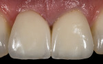 Fig. 19. The definitive porcelain crowns with optimal gingival profile complete the illusion of natural teeth.