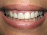 Figure 1  Pretreatment smile view.