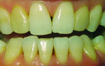 Fig 1. The patient's composite veneers had become discolored and tissue had migrated.
