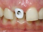 Figure 12  The zirconia abutment in place for try-in.