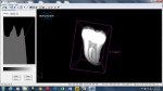 The same micro-CT scan from Figure 4 is visualized as sectional views (Dataviewer, Micro Photonics Advanced Instruments, www.microphotonics.com) and as a 3D model (CTvox, Micro Photonics Advanced Instruments). These programs offer a comparative and scaled cross sectional view of tooth scans to accurately reveal internal anatomy and aberrations in tooth structure that may indicate additional specialized endodontic instrumentation or techniques.