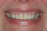 Pretreatment smile showing excessive gingival display.