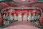 Gingival flaps reflected exposed prominent bony ridges and high crestal bone levels.