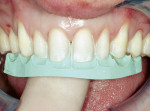 Figure 7  Preparation guides made from thediagnostic wax-up were used to verify the facialand incisal reduction.