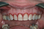 Gingivectomies exposed the enamel of anatomic crowns.