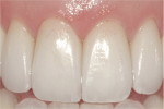 Figure 17  Postoperative 1:1 view of the definitive,minimal preparation veneer restorations onteeth Nos. 7 through 10.