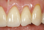 Figure 4  The ceramic restoration is chippedfrom excessive lateral excursive stress.
