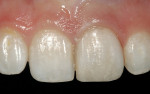 Figure 10  A minimally invasive composite veneerwas used to refurbish this ceramic restoration.