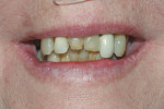 Exaggerated smile to evaluate gingival dispay