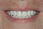 Provisional prosthesis with hidden transition line and esthetic smile line.