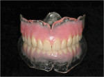 Figure 4  Eclipse clear denture bases.