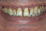 Exaggerated smile to determine gingival display.