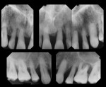 Case 2 periapical radiographs of maxillary teeth prior to treatment. These were used to establish the condition of the dentition, not for treatment planning of implant placement.