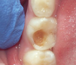The patient presented after an old restoration on tooth K had debonded.