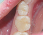 The tooth immediately after placement of the bulk-fill composite.