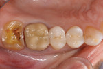 Figure 3  Tooth No. 15 was conservatively preparedto accommodate the all-ceramic CAD/CAMonlay.