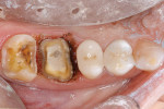 Figure 6  Tissue troughing was achieved with adiode laser to create clean, crisp margins.
