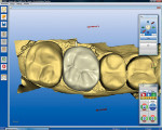 Figure 9  The CEREC AC System automaticallyproposed a full-crown restoration design fortooth No. 14.