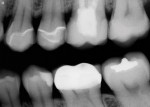 Figure 14  Postoperative radiograph showed excellentmarginal adaptation of the all-ceramic CAD/CAM restorations on teeth Nos. 12 through 15.