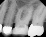 Figure 1  Pretreatment radiograph of molar case.