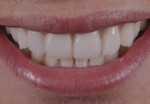 Final restorations harmoniously blending with the existing natural teeth and smile; note excellent marginal fit and tissue response.