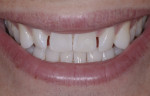 Preoperative smile showing spacing and rotations; note flat or reversed smile line when compared to the lower lip.