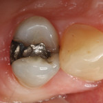 At patient presentation, tooth No. 4 had an existing amalgam restoration with a mesial marginal ridge fracture.