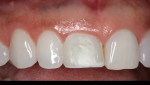 Fig. 3 The finished screw-retained provisional restoration.