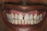 The patient's high lip line easily displayed a discolored, ill-fitting crown margin affecting the soft tissue.