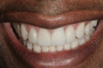 A natural and pleasing smile made the patient more confident.